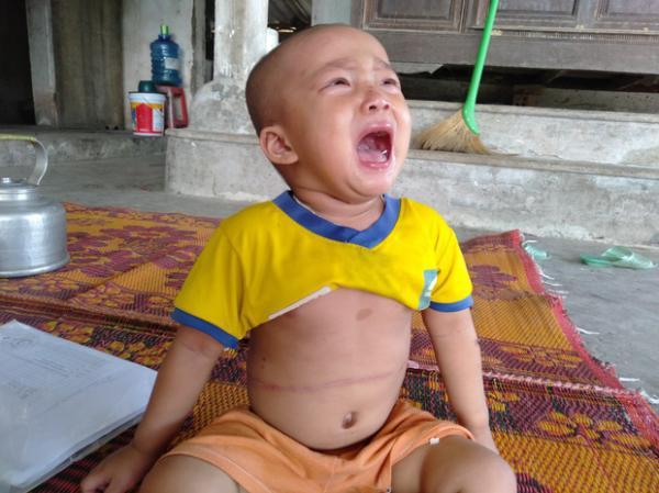 """Tiếng khóc xé lòng của bé gái 3 tuổi mắc bệnh hiểm nghèo: """"Bà ơi, cháu đau lắm, sao bố mẹ mãi không về hả bà?"""""""